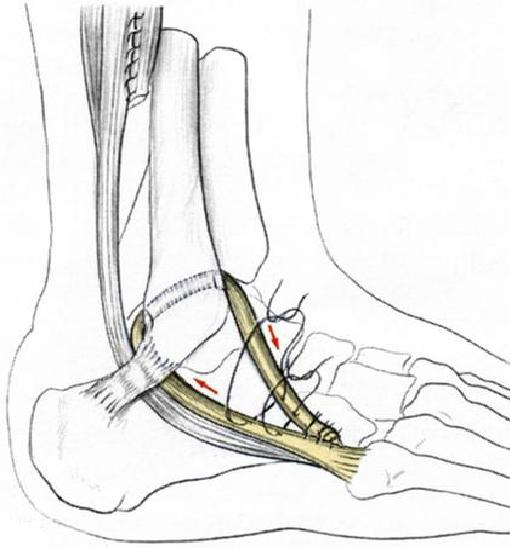 style le plus récent vraie qualité nouvelle sélection Docteur Thibault VERMERSCH - Pathologie sportive de cheville