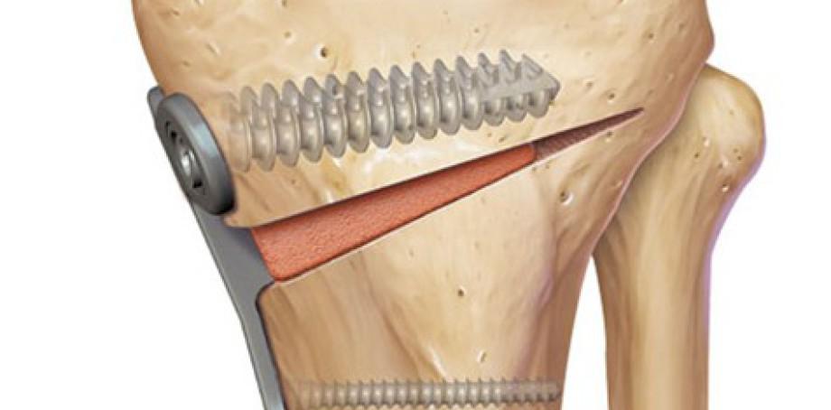 """Résultat de recherche d'images pour """"osteotomie tibiale"""""""
